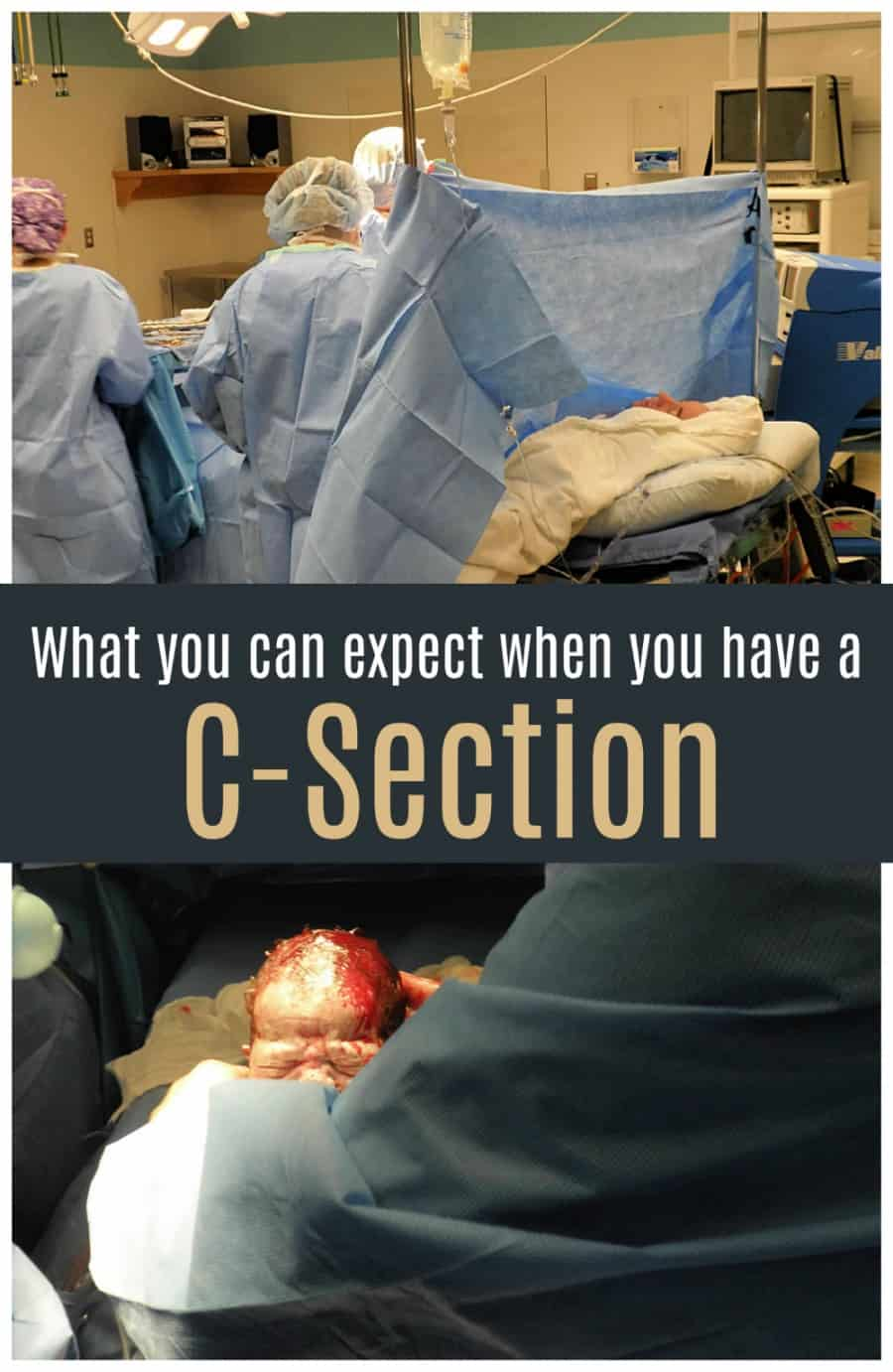 What to Expect when you have a C-Section Birth
