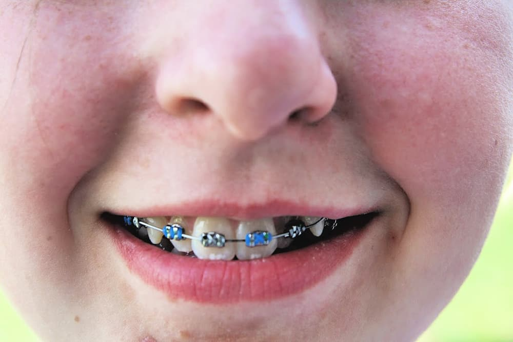 What You Need To Know About Braces - The Good, The Bad, & The Ugly